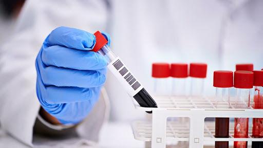 Azərbaycanda daha altı nəfər koronavirusdan öldü: 547 yeni yoluxma